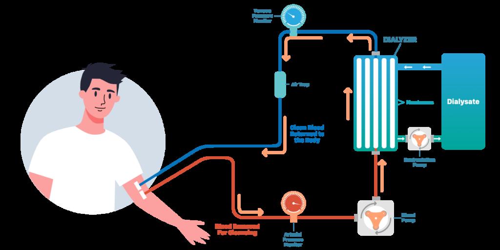 Simplified description of a dialysis setup